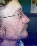 rhinophyma_beforeafter_small (5)