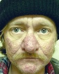 rhinophyma_beforeafter_small