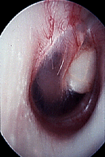 Congenital+cholesteatoma