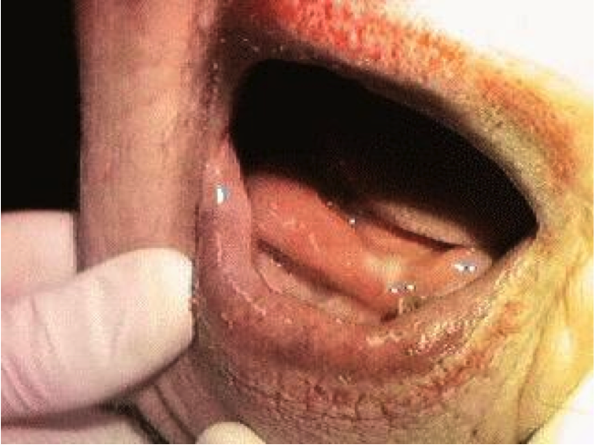 Ludwig angina images galleries with a for Floor of mouth