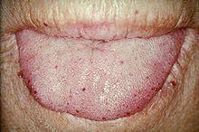 220px-TongueTelang